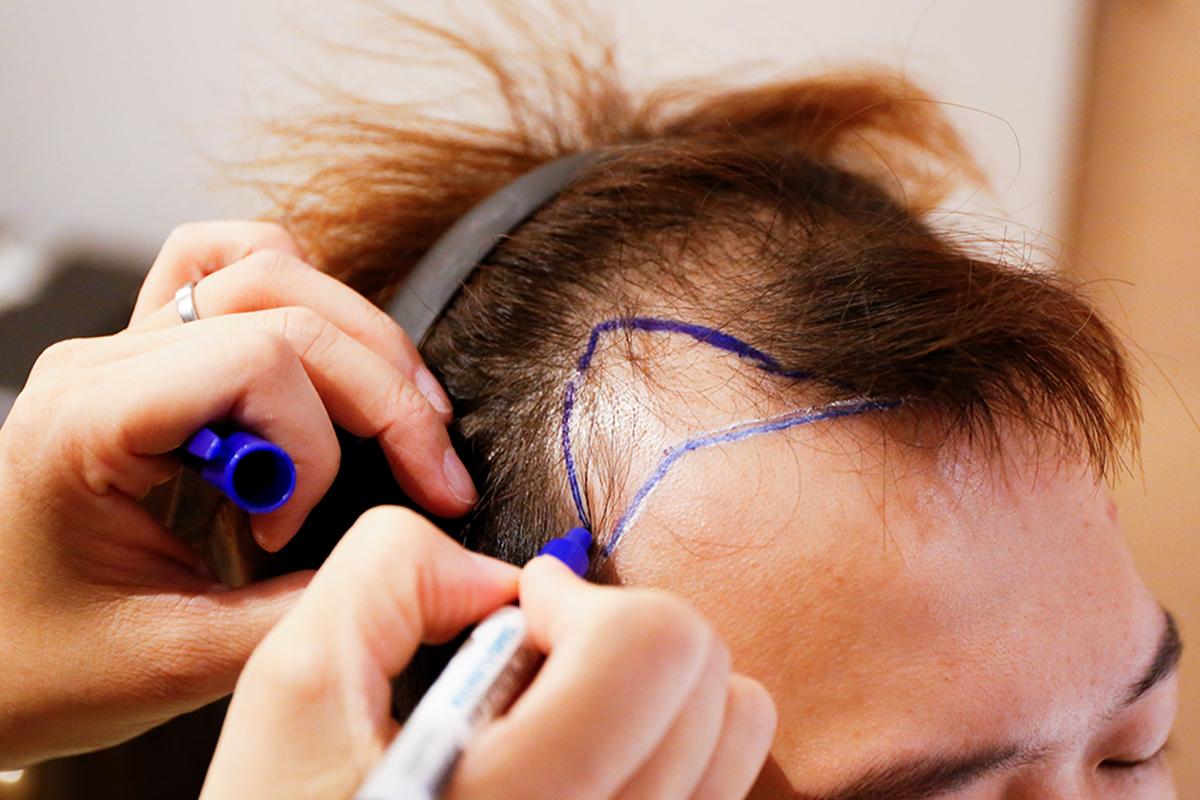 落髮治療01
