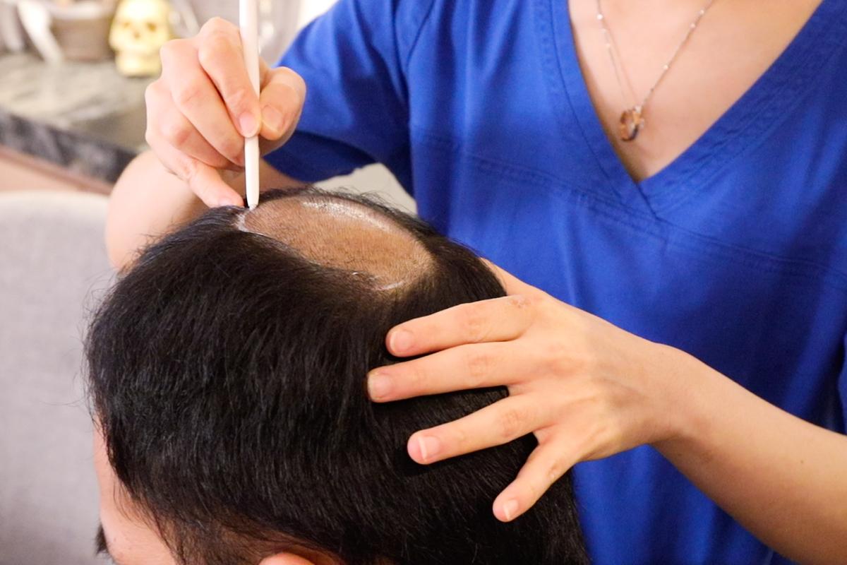 落髮治療03