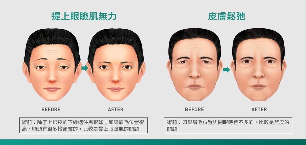 雙眼皮手術選擇04
