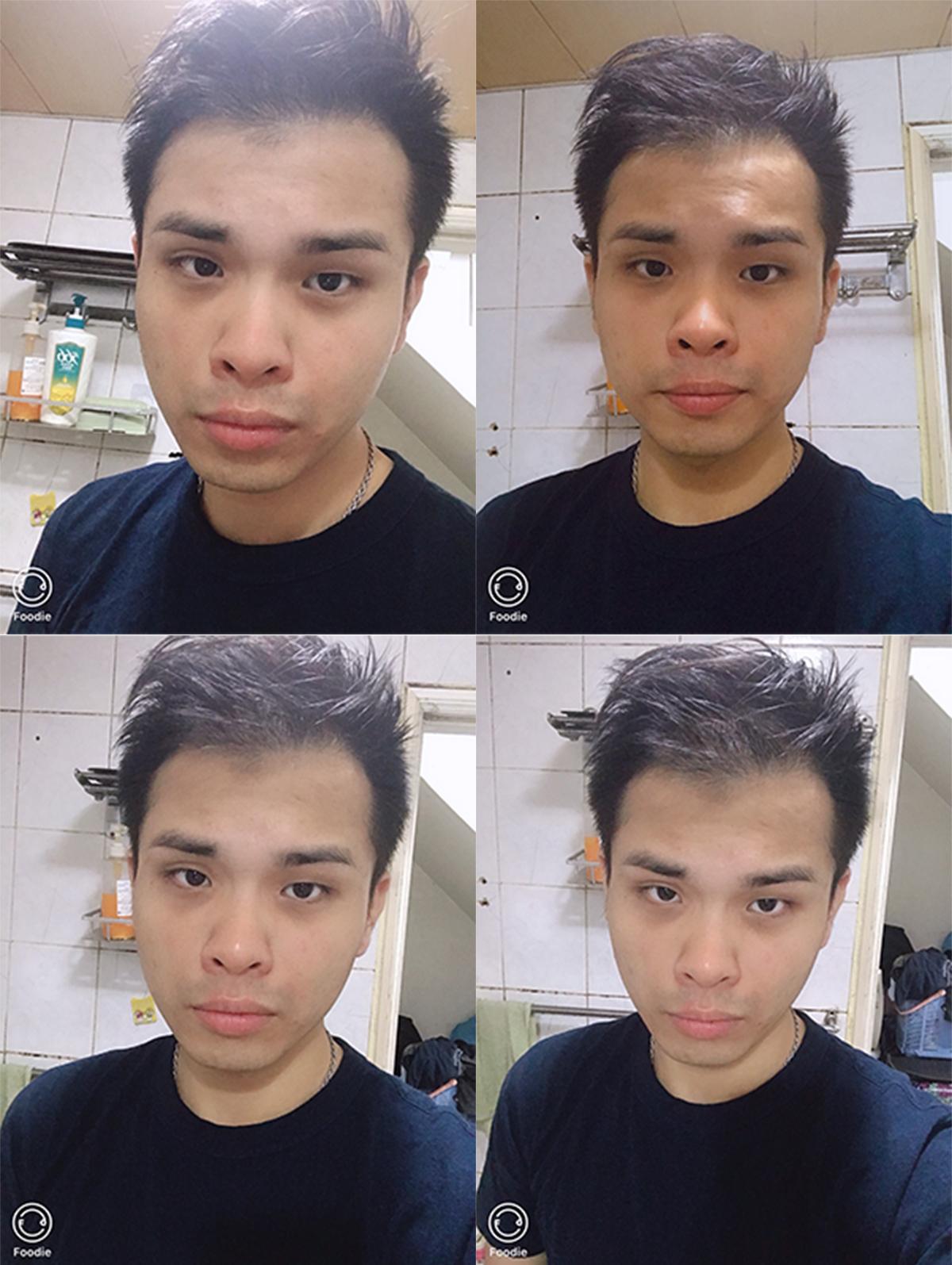 FUE植髮手術10