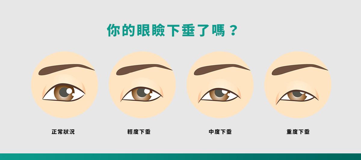車縫式雙眼皮01