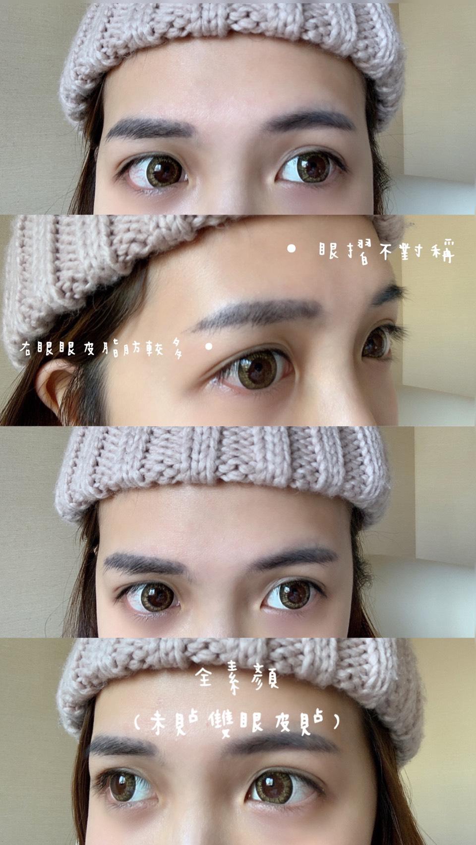 雙眼皮02